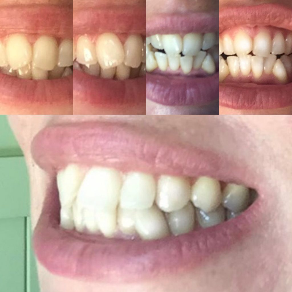 Natural ways to whiten teeth - charcoal teeth whitening strips RESULTS