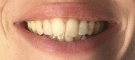 Natural ways to whiten teeth - charcoal teeth whitening strips BEFORE