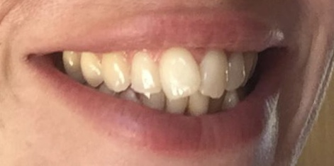 Natural ways to whiten teeth - charcoal teeth whitening strips DAY THREE