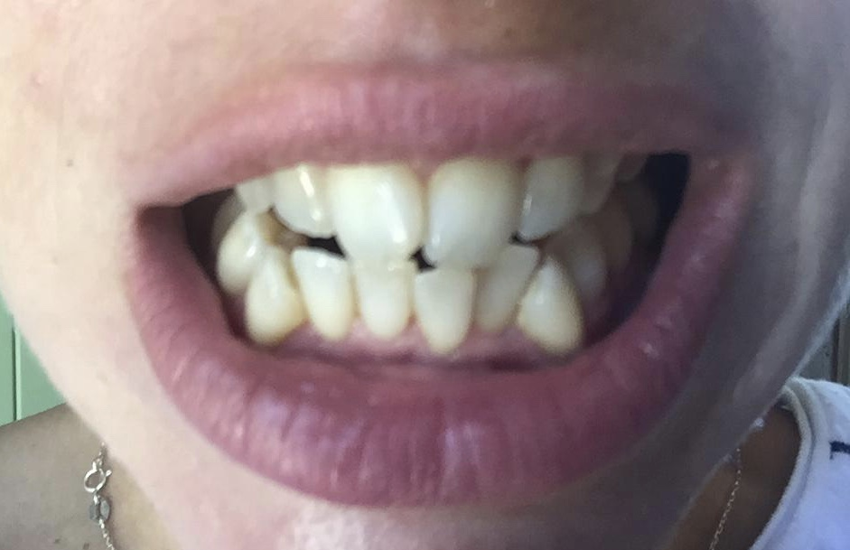 Natural ways to whiten teeth - charcoal teeth whitening strips DAY SEVEN