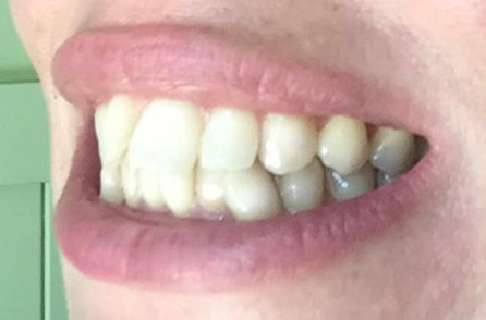 Natural ways to whiten teeth - charcoal teeth whitening strips DAY 14